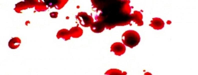 Dove trovare sangue finto lavabile?